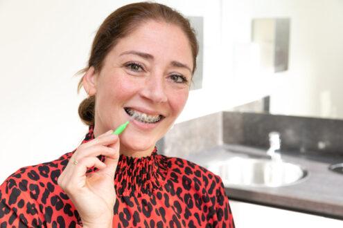 orthodontist Rotterdam - poetsinstructie TopOrtho Rotterdam